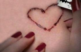 Tendencia a cortarse la piel