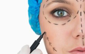 Cirugías estéticas post divorcios en alza
