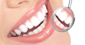 blanqueamiento-dental-2