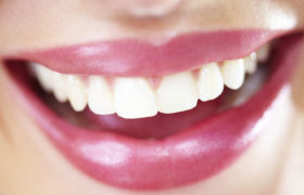 Blancorexia: La sonrisa que todos quieren