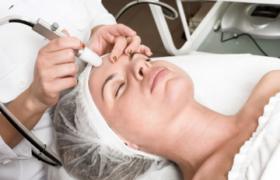 Cuales son los efectos del peeling, el tratamiento que es tendencia para la piel