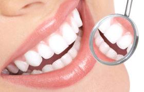 Blanqueamiento dental, importante tendencia